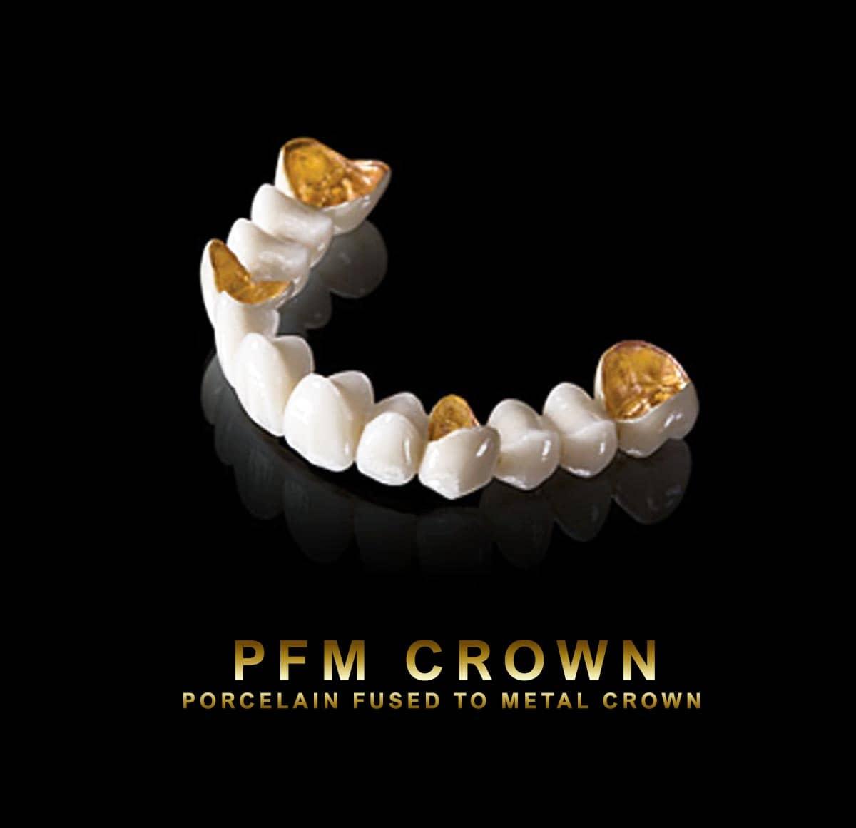 PFM Crown | PFM Bridge | Zirconia & PFM Dental Crown Dubai