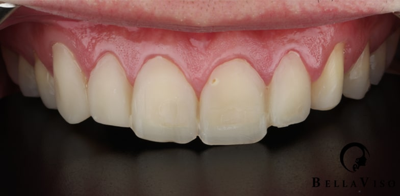 Case 2 Before Hollywood Smile