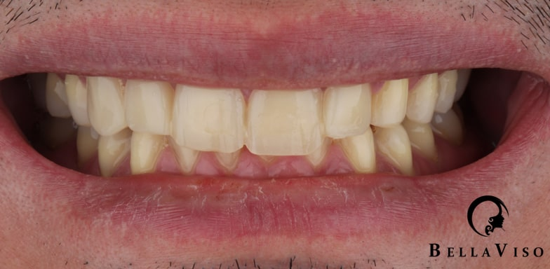 Case 4 Before Hollywood Smile
