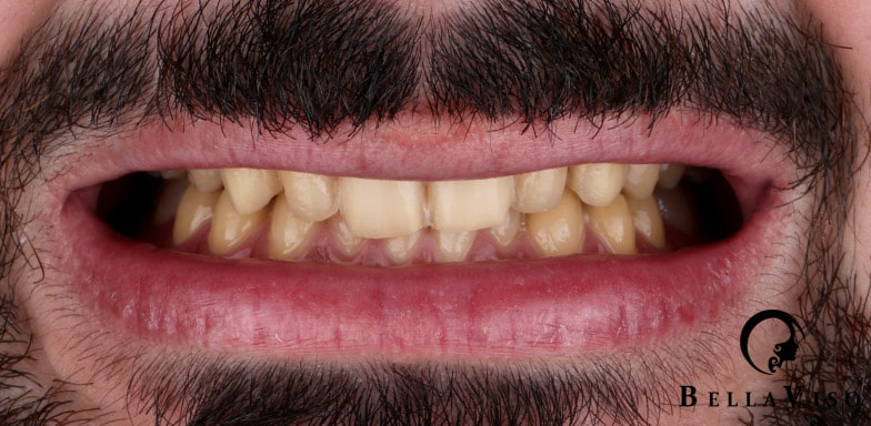 Case 1 Before Hollywood Smile