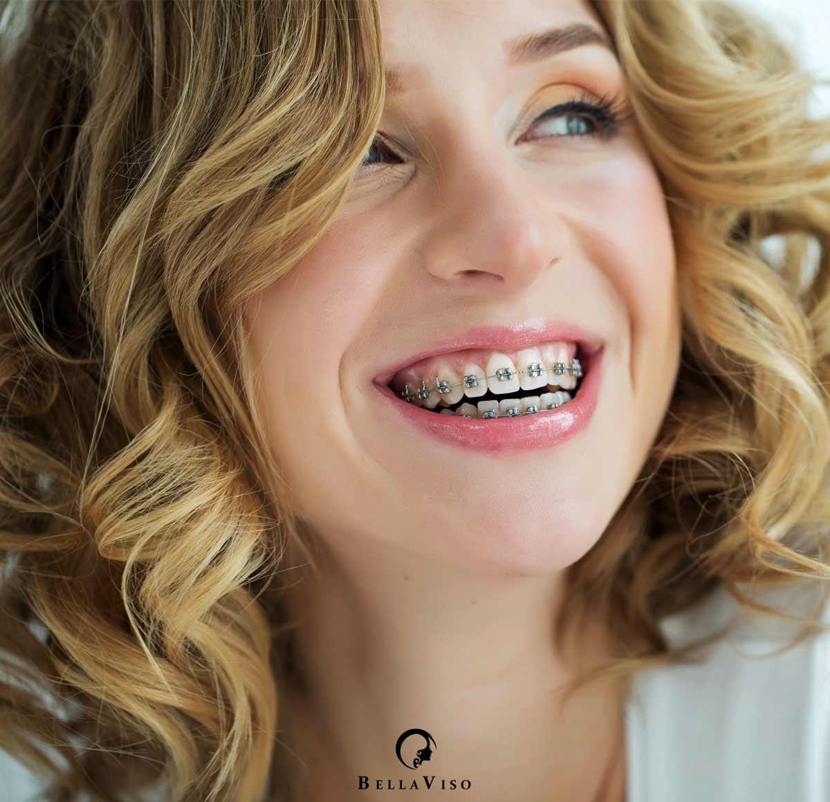 Dental Braces The Procedure