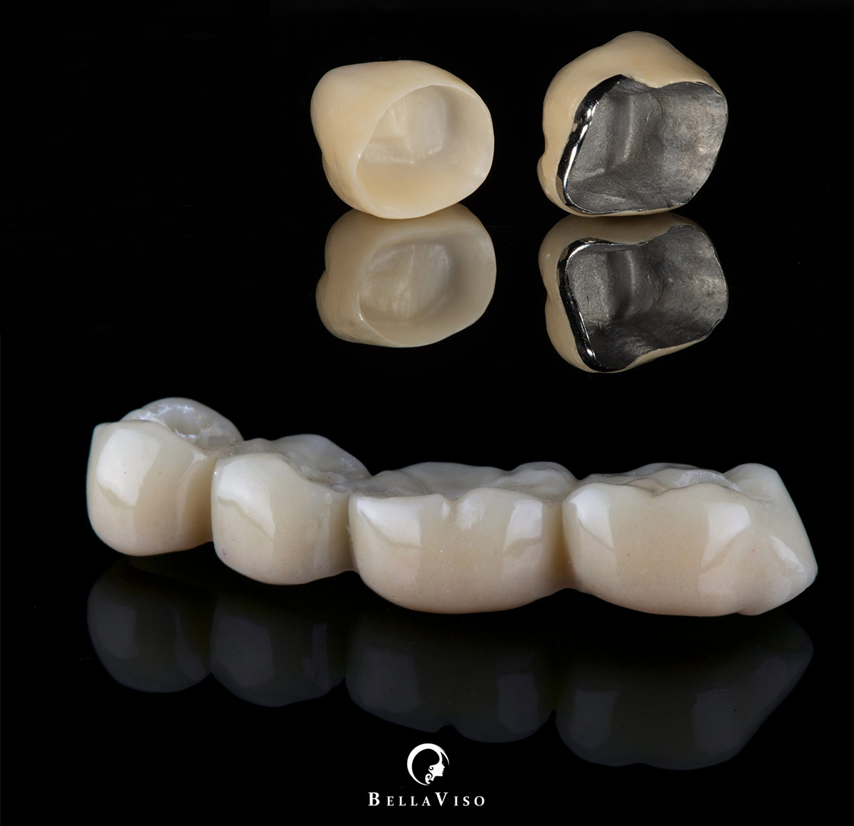 Dental Bridges and Dental Crown in Dubai