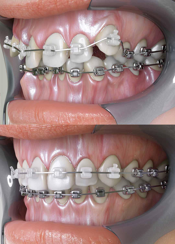 Why do i need dental braces