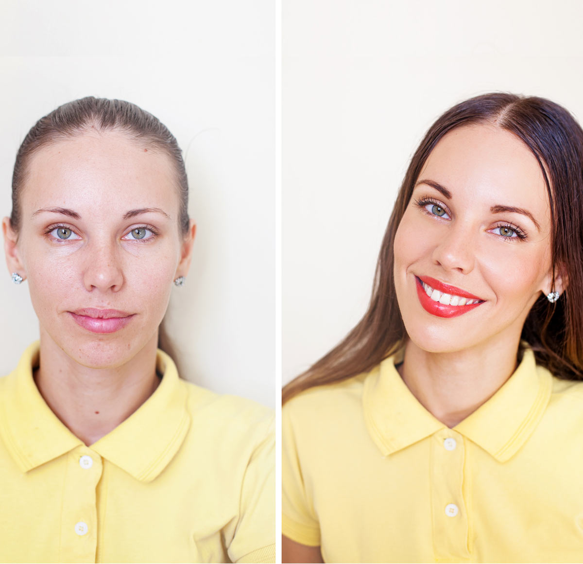 Treatment Solution for Smile Makeover