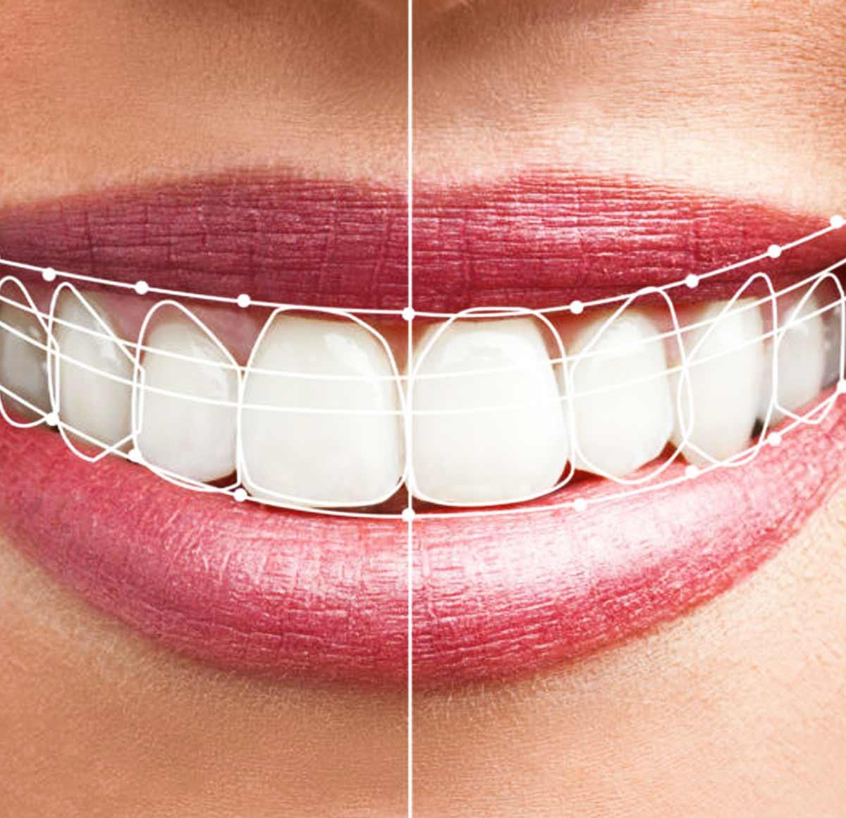 What is Digital Smile Design