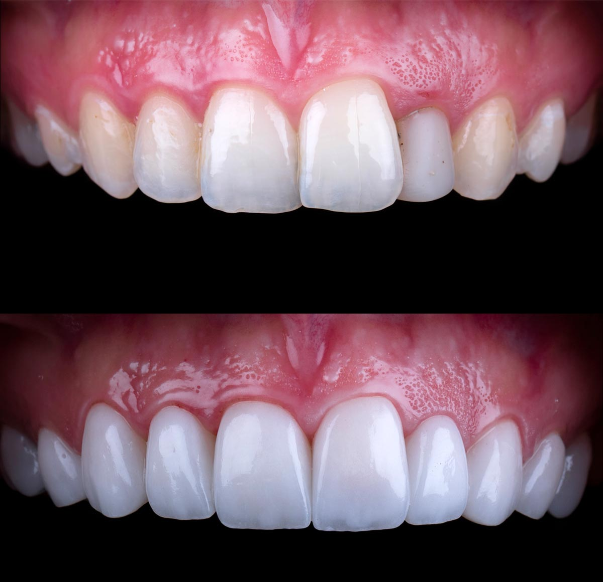 What is Smile Makeover Dubai