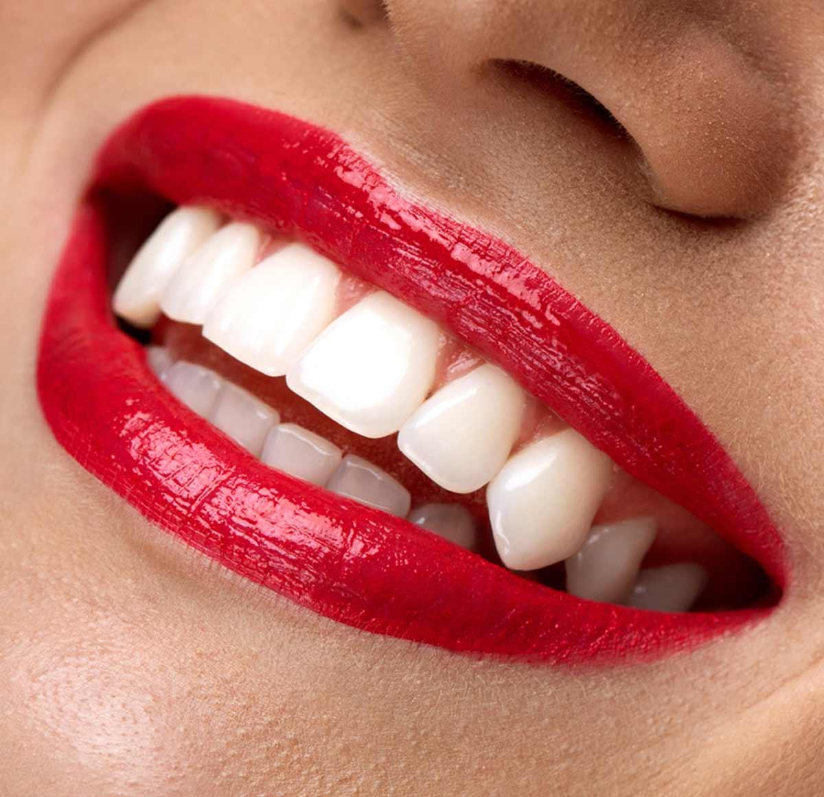 Zirconia Crown Dubai BellaViso Zirconia Crown Teeth
