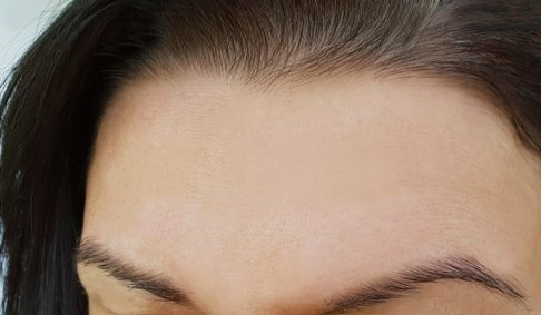 Best Anti Aging Facial Treatments after