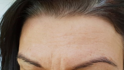 Best Anti Aging Facial Treatments before