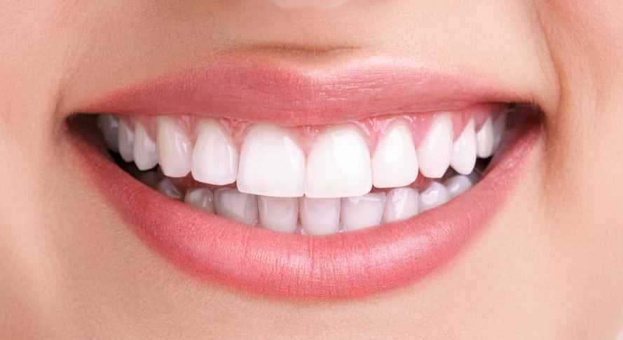 Role Zoom Teeth Whitening Plays to Get you a Brighter Smile after
