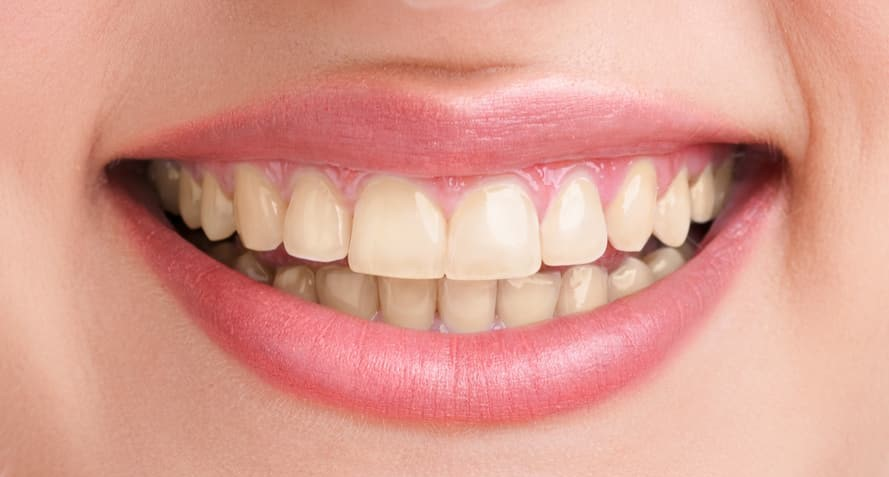 Role Zoom Teeth Whitening Plays to Get you a Brighter Smile before