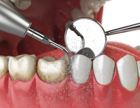Dental Hygiene-min
