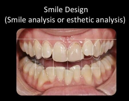 Digital Smile Design-min