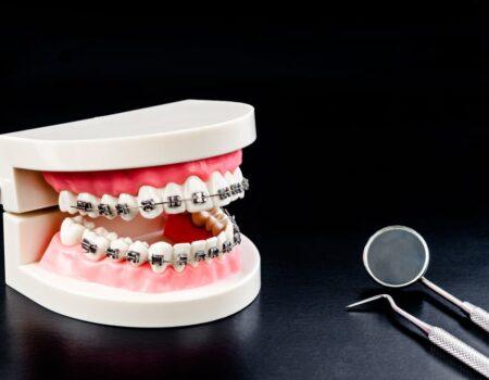 Orthodontics-min