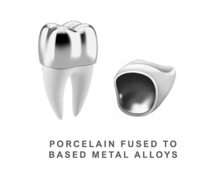 Porcelain-Fused-to-Based-Metal-Alloys