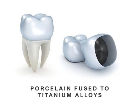 Porcelain-Fused-to-Titanium-Alloys