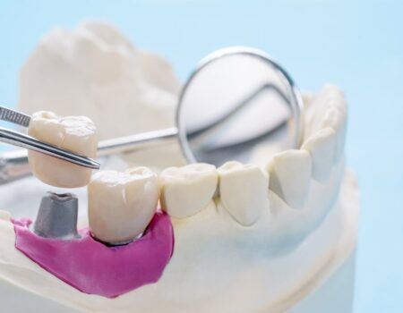 Prosthodontics-min