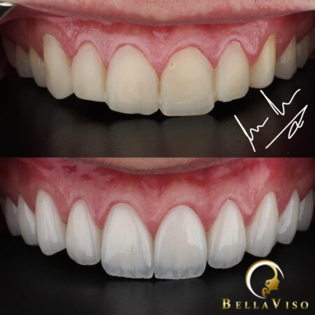 The Requirement for Hollywood Smile