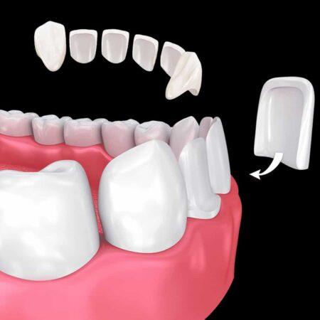 Types-of-Dental-Veneers